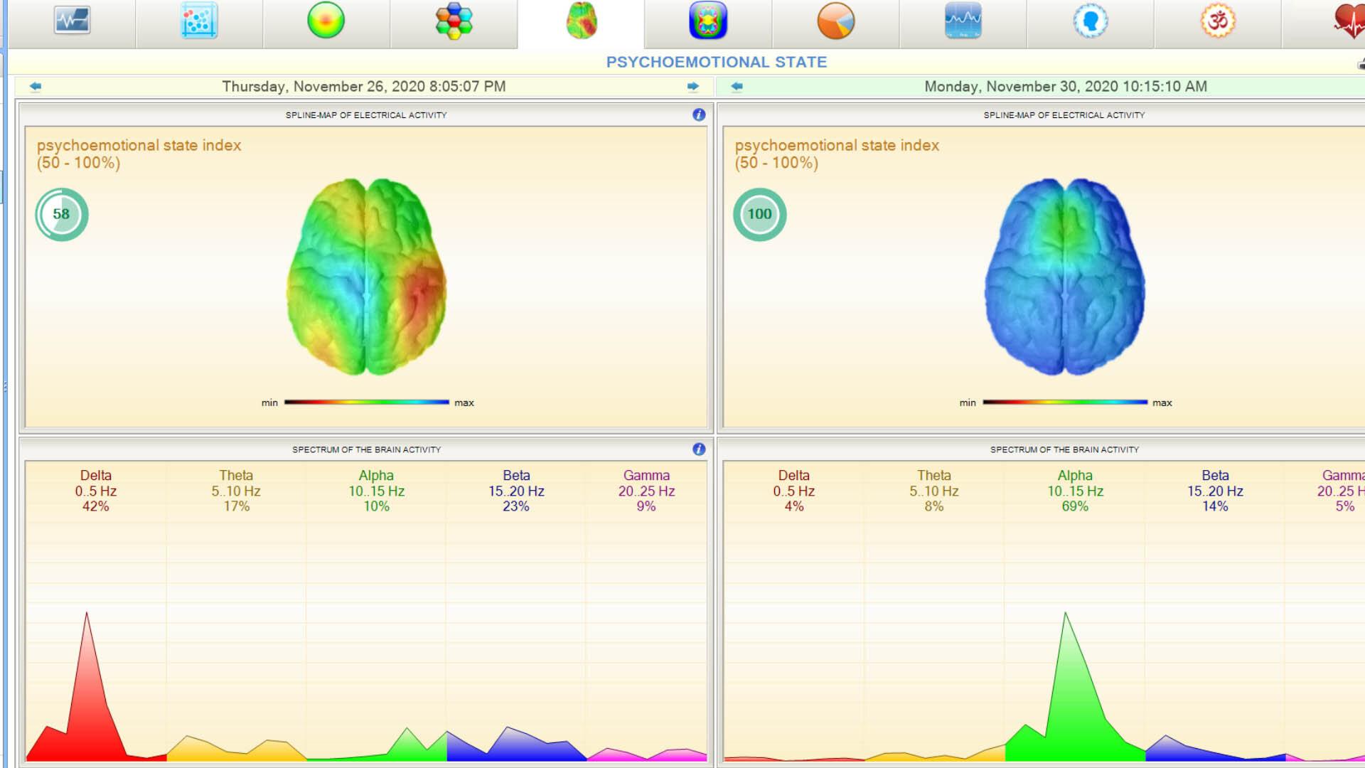AmpCoil & VScan HRV Bundle